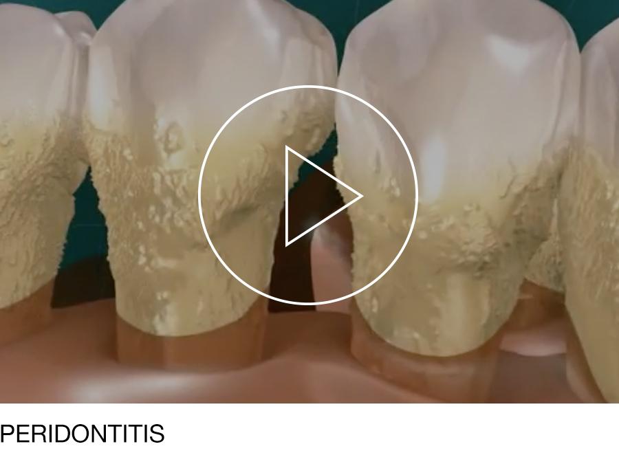 periodontal_06.jpg
