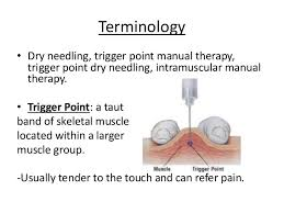 Find a Therapist and try Dry Needle Therapy. -