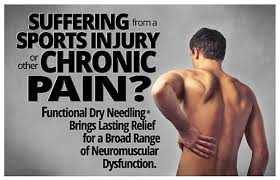 Dry Needling can Help you Return to Feeling Pain Free Again.