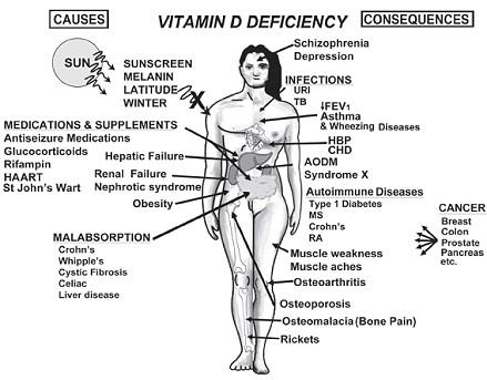 vitamin-d-deficiency.jpg