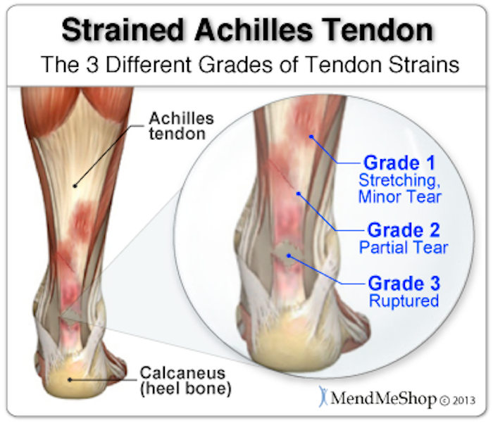 achilles-tendon-3-types-of-strains.png