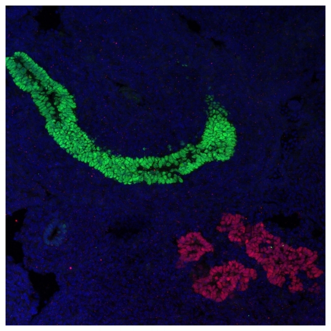E12.5 intenstine (green) and pancreas (red)
