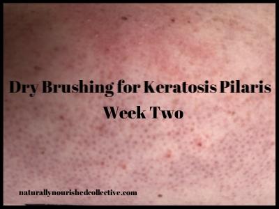 Dry Brushing for Keratosis Pilaris Vol. 2
