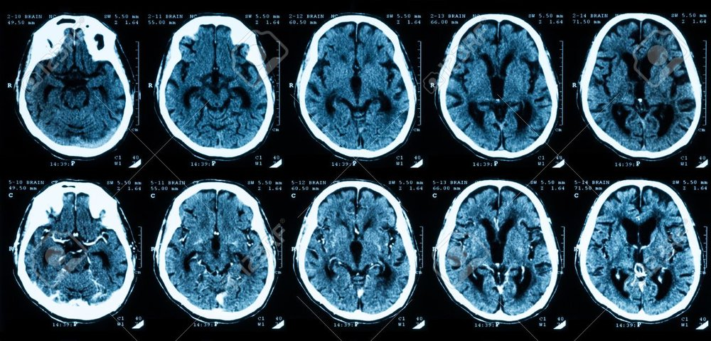 40329551-ct-scan-of-the-brain-comparison-between-with-and-without-contrast-media-.jpg