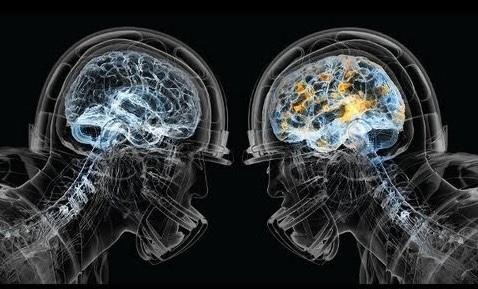 Brain1.jpeg