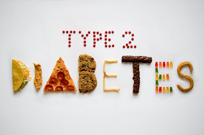 Type 2 diabetes by Thomas Cheng.