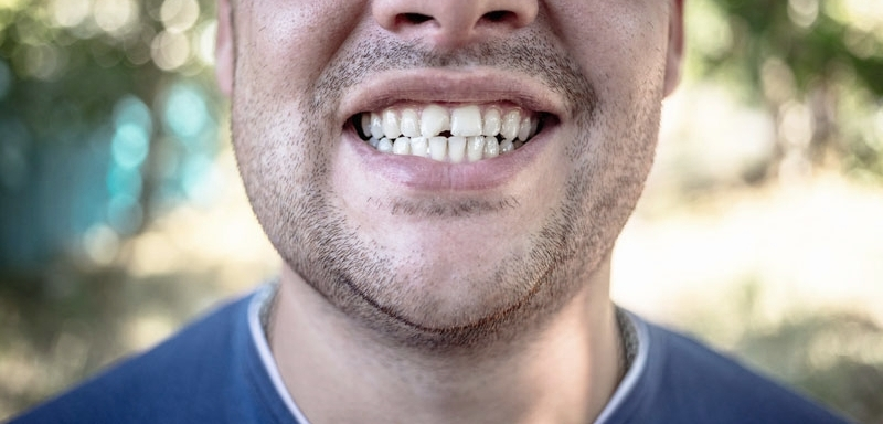 Close-up of man with chipped teeth before he has cosmetic bonding at Titchfield Dental