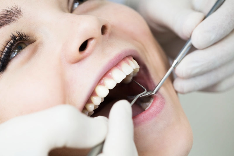 Dentist examining patient's mouth before white filling procedure