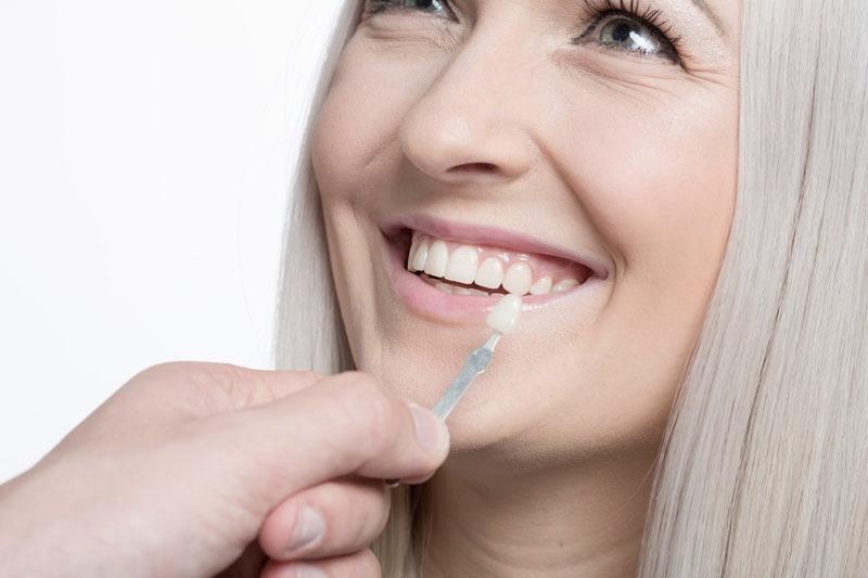 Close-up of dentist holding a dental veneer against smiling blonde lady's teeth