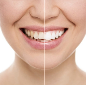 Close-up of before and after home teeth whitening