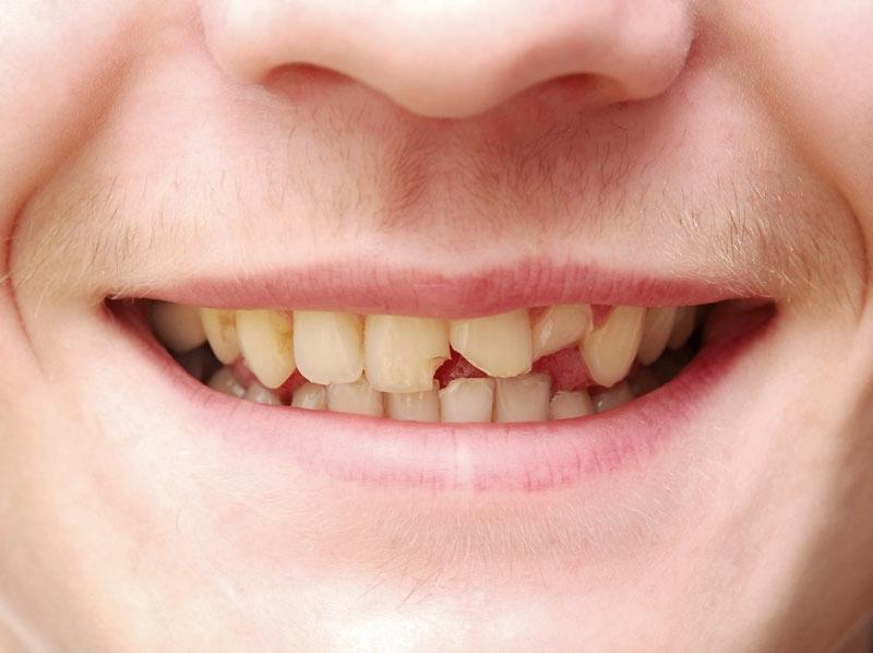 worn-teeth.jpg