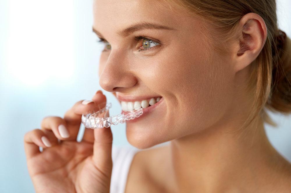 - £1,000 off adult braces