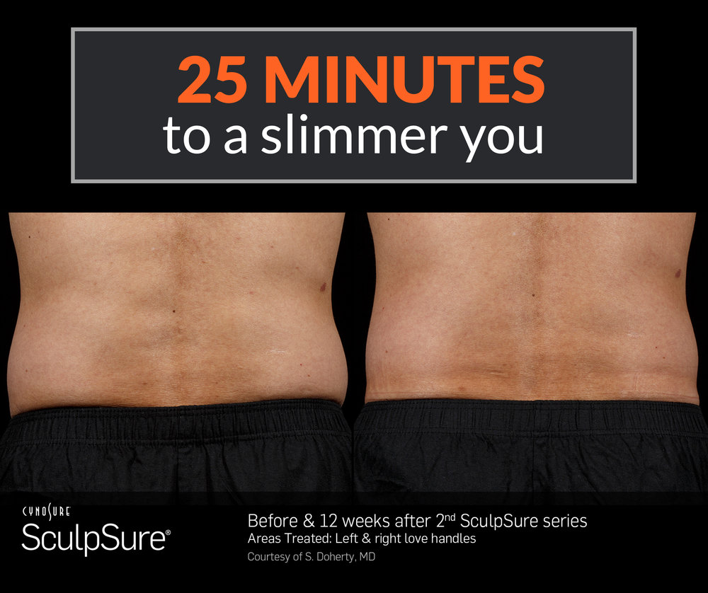 Men's body contouring results with SculpSure. Get rid of unwanted fat with SculpSure. Hill Country Vitality is a certified provider of SculpSure in the San Antonio, TX area.