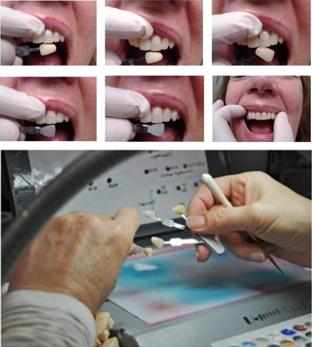Advanced Smiles' Custom Shading - We work with our in-house shading technician to achieve your exact shade!
