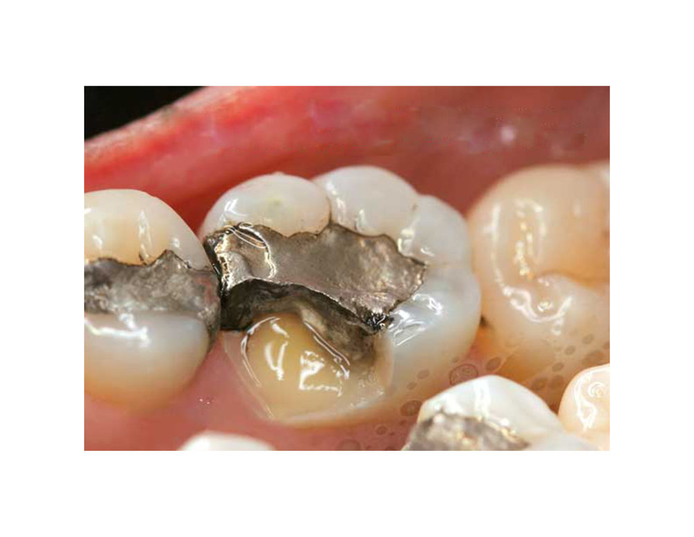 Old, Metal Fillings - They patch holes without actually bonding to the tooth, which can cause long-term problems.