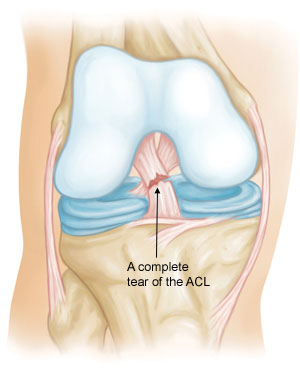 From the AAOS Orthoinfo Website – visit it for more ACL injury information