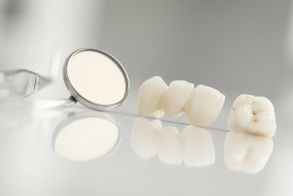 Dental Crowns in dental tray