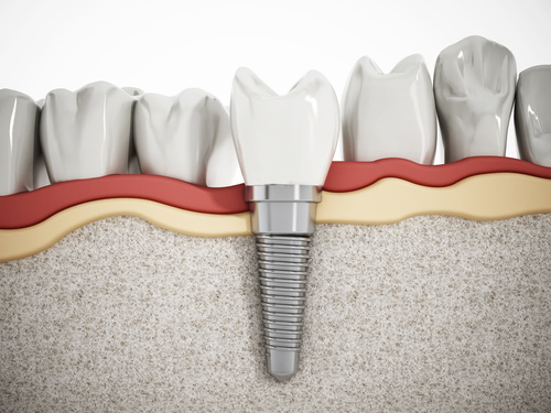 3D model showing how dental implant is used in place of a missing tooth root