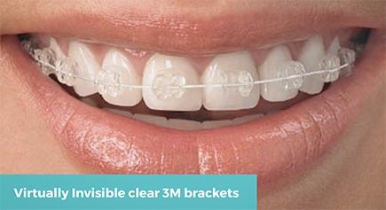 q-fixed-braces.jpg