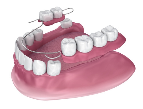 Close-up 3D model of partial denture