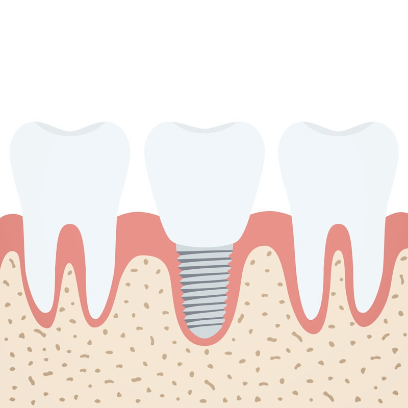 Illustration of how an implant is used in placed of a missing tooth root