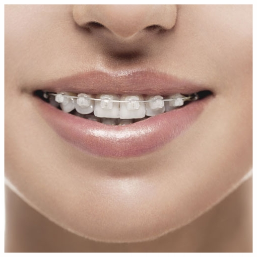 Close-up of Six Month Smiles clear orthodontic brace