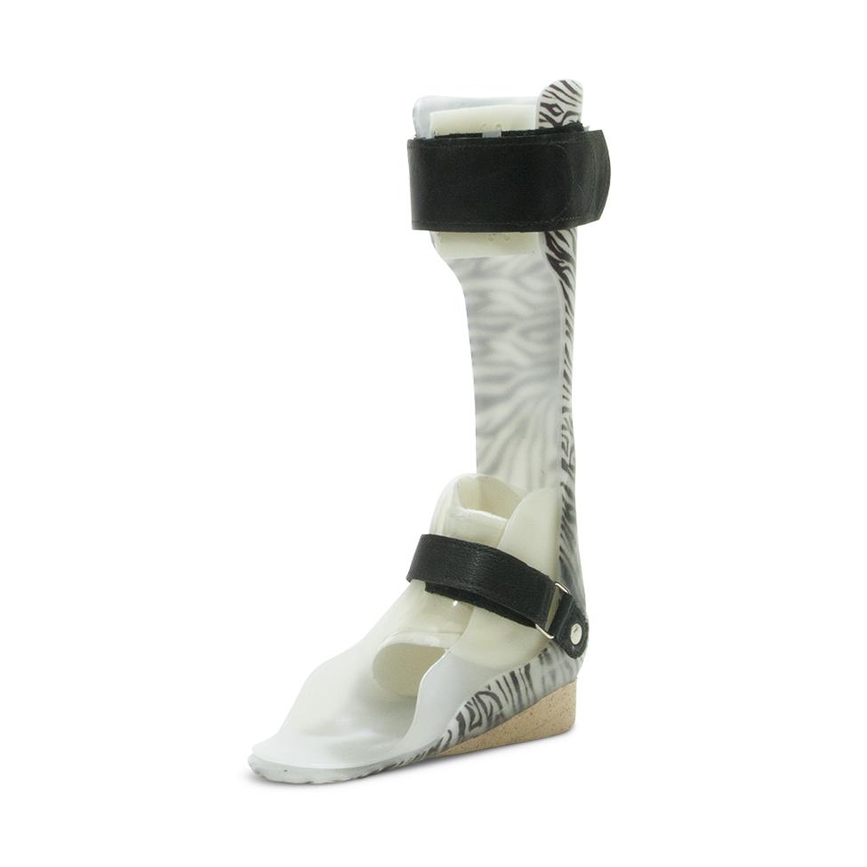 Hybrid Ankle-Foot, Supramalleolar Orthosis (Hybrid-AFO)