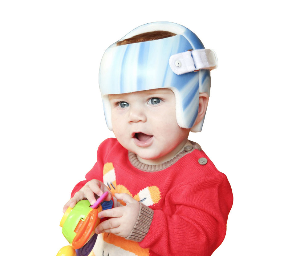 BoundlessBracing_HeadOrthotic_CustomOrthoses-Cranial Orthoses