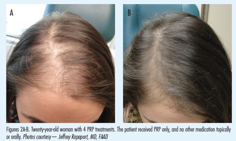 hair prp.jpg
