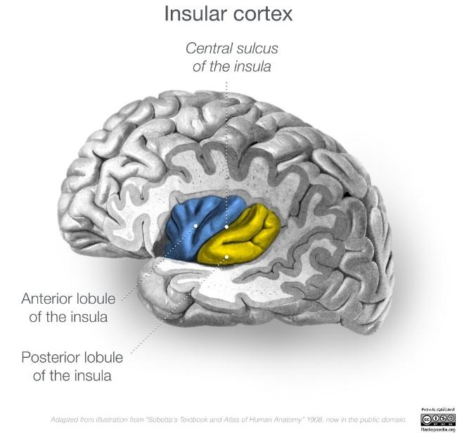 Insula Cortex Case courtesy of A.Prof Frank Gaillard, Radiopaedia.org, rID: 46846