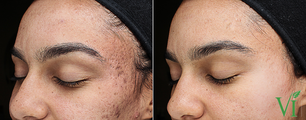 6 VI Peel Purify with Precision Plus over a 7 month period