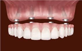 Dental Implant 2 (1).png
