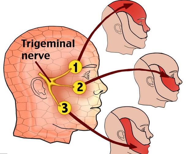Trigeminal verve - (Cranial nerve V)