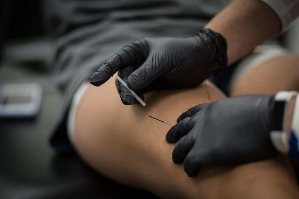Baltimore sports physical therapy, Howard county best sports physical therapy, dry needling, Elkridge physical therapy, Columbia physical therapy, dry needle, acupuncture Howard county,