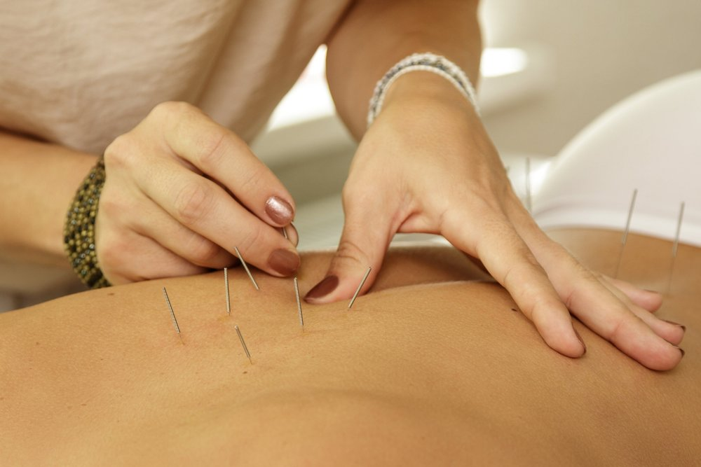 Acupuncture treatment with Heather Bree, Hillsborough NC