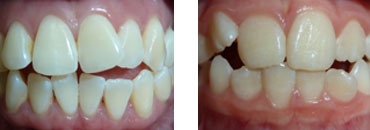 Crooked or crowded teeth:    because the upper jaw does not fully develop.