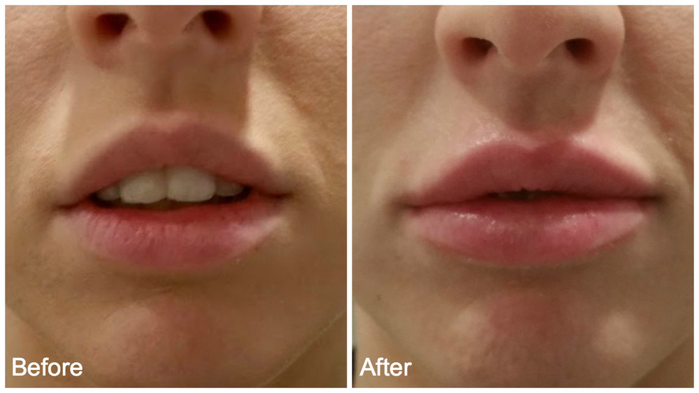 juvederm+lip+injections.jpg