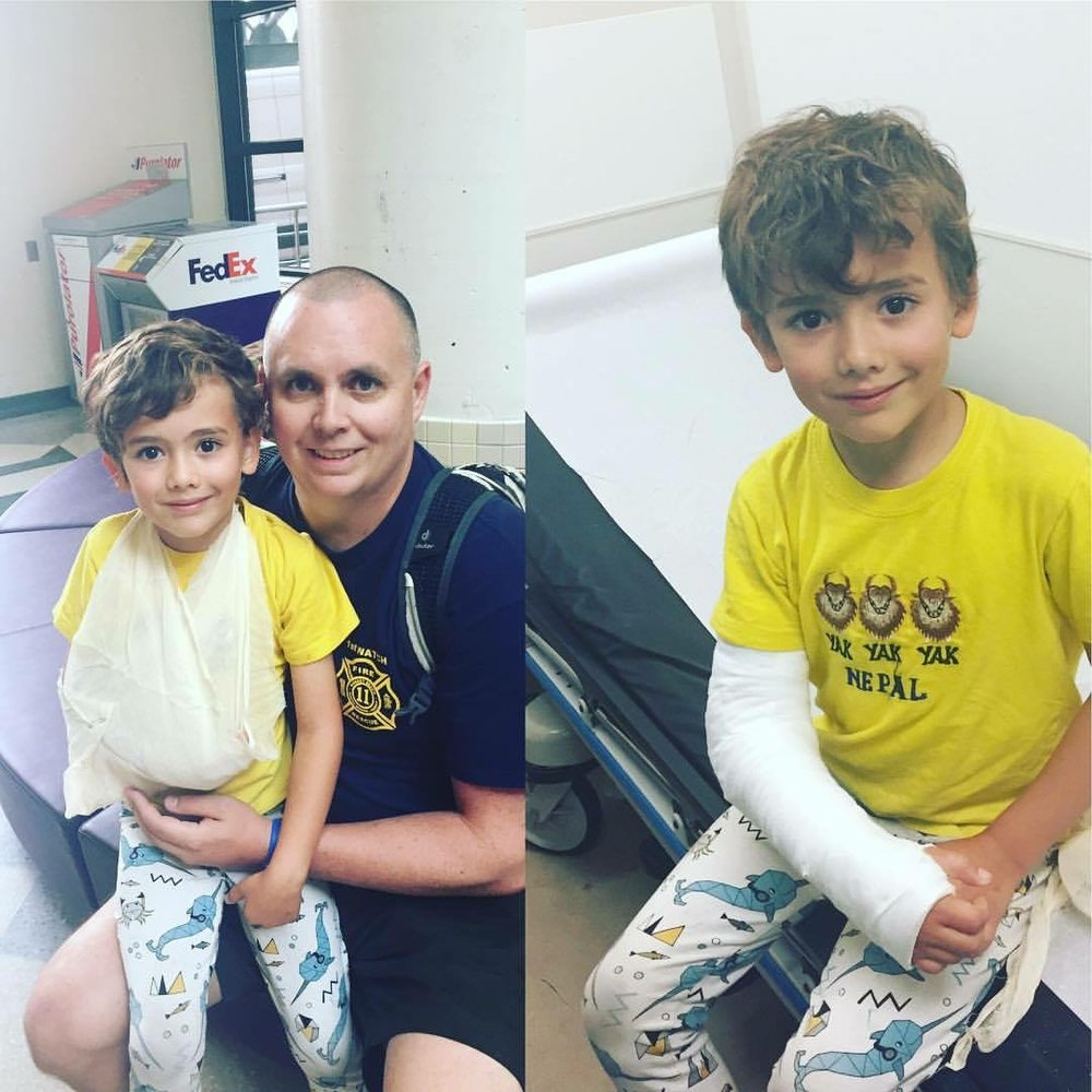Hudson getting a cast for his broken arm at the Hospital for Sick Kids in Toronto.  August 26, 2017