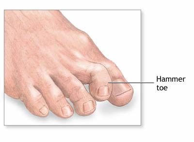 hammertoe-doctor-podiatrist-marquette-munising-upper-peninsula-michigan