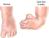 pediatric-foot-deformity-doctor-marquette-munising-upper-peninsula-michigan