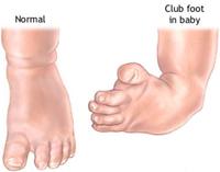 pediatric-foot-deformity-doctor-marquette-munising-upper-peninsula-michigan