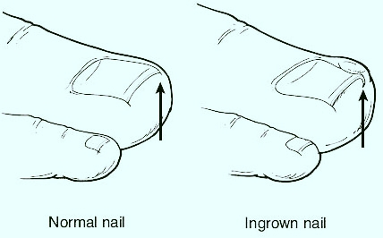 ingrown-nail-treatment-doctor--marquette-munising-upper-peninsula-michigan