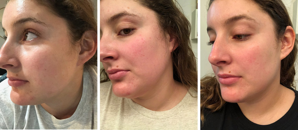 left-side-glossier-solution-results.jpg