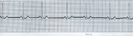 ECG from a normal dog