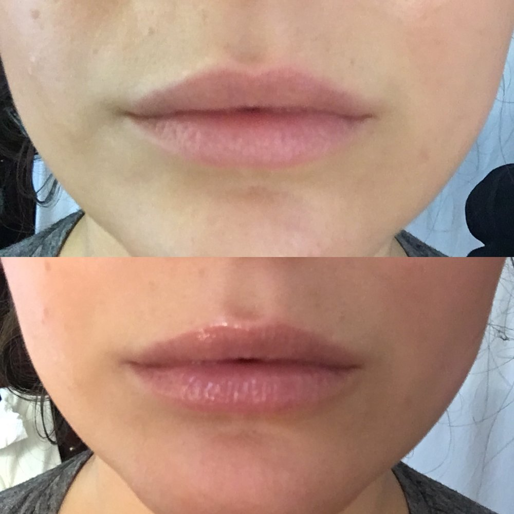 Before/After Dior Lip Maximizer
