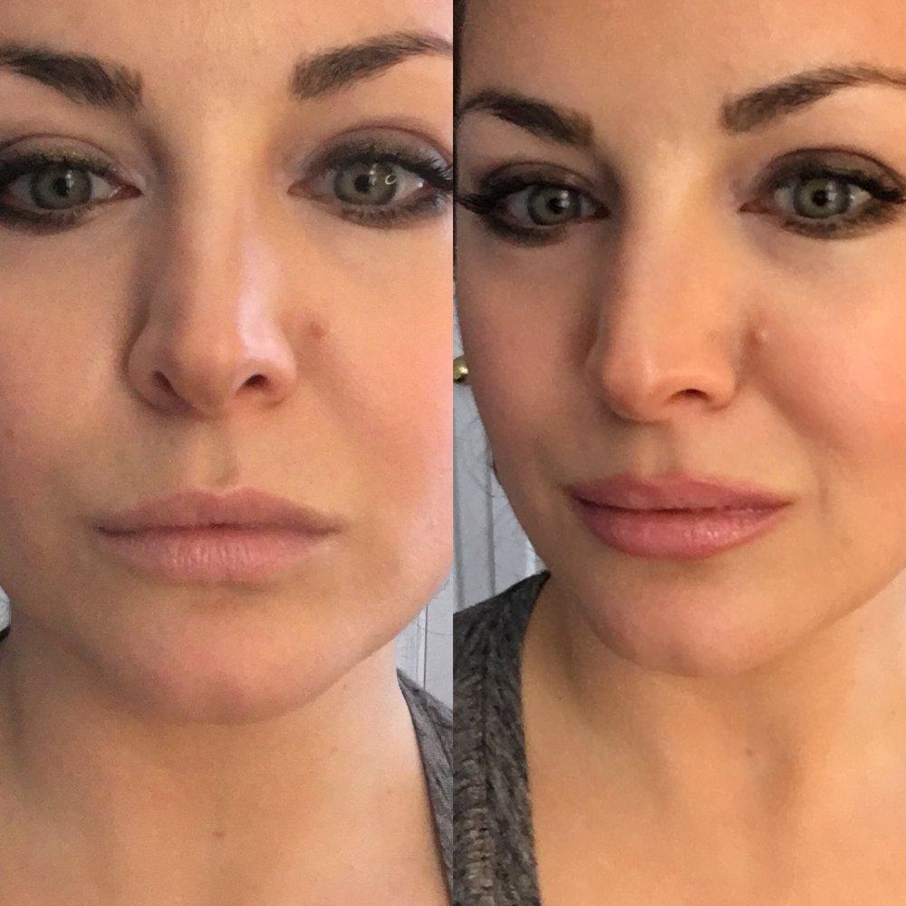 Just lip balm vs. super subtle ombre