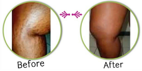 stretch marks before after.png