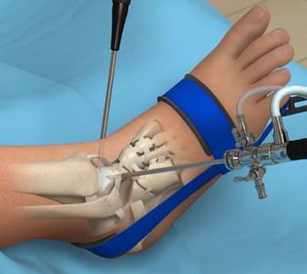 ankle-anthroscopy.jpg