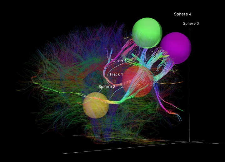 Select white matter tracts that run through spherical Regions of Interest (ROIs), superimposed over a larger amount of tracts from the same data set. Measured from diffusion spectral imaging (DSI).