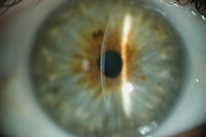 Learn More About The Eye Intelon Optics